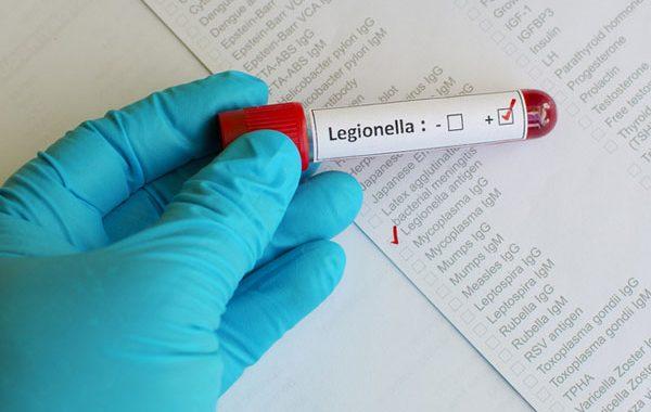 Legionnaires' Disease Outbreak Investigation